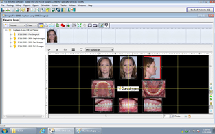 Carestream Dental Imaging Demo - Carestream Dental Imaging