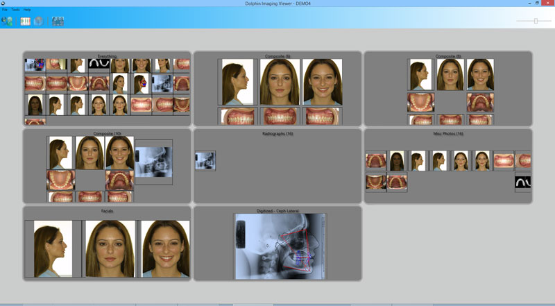 Dolphin ImagingPlus Demo - ImagingPlus