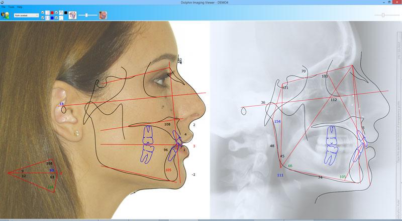 Dolphin Imaging Demo - ImagingPlus
